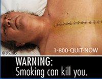 Inilah 9 Gambar Seram Baru di Bungkus Rokok Amerika