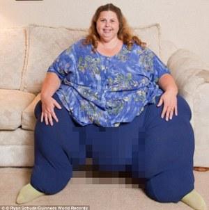 Wanita Terberat di Dunia Turunkan Berat Badan dengan Seks 7 Kali Sehari