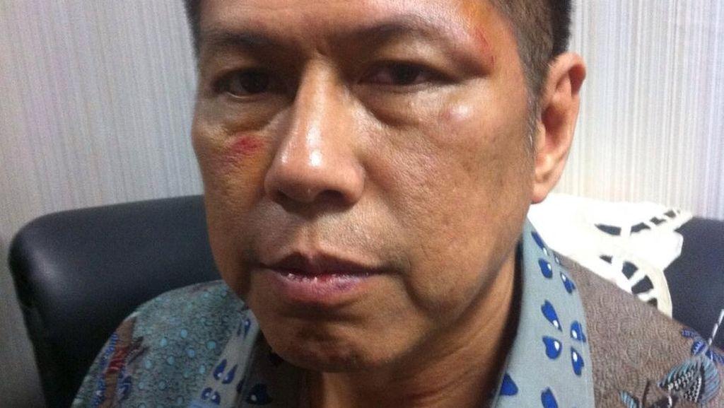 Kasus Pemukulan Anggota DPR, Politikus PD Mulyadi Bantah Perkelahian