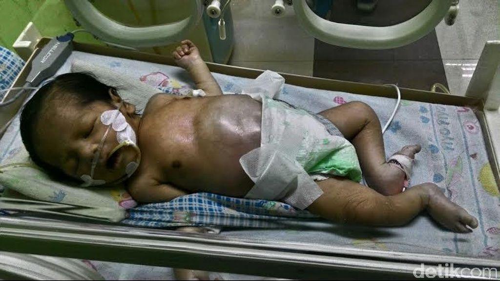 Tolong, Bayi Anak Tukang Bubur di Purwakarta Ini Harus Jalani Operasi Tak Punya Uang