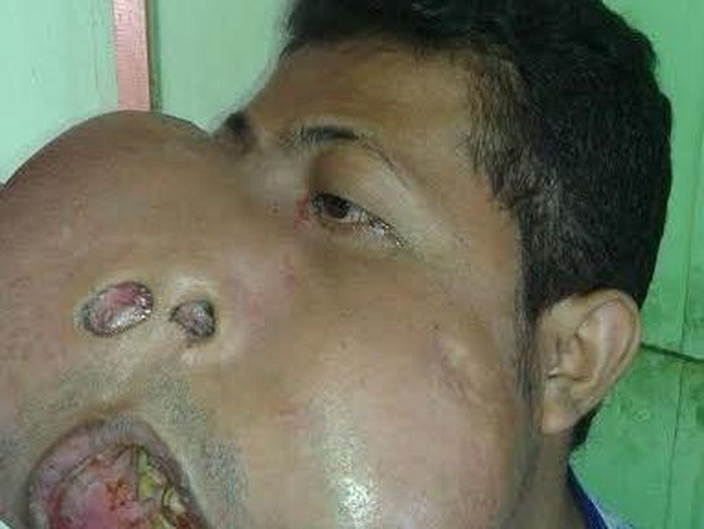 Pria dengan Tumor di Wajah ini Menunggu Bantuan Dokter untuk Operasi