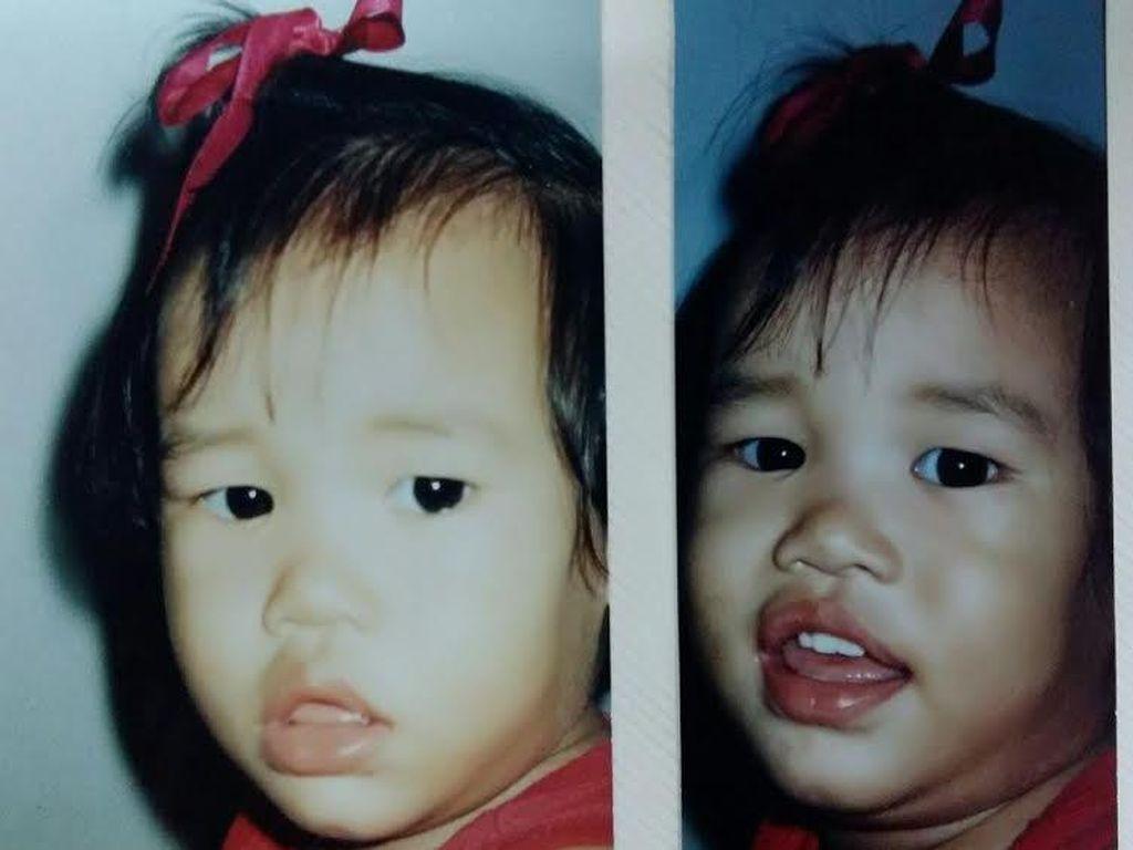 Anak Kecil Hilang Tahun 1997 Lalu, Ibu: Saya Yakin Dinda Masih Hidup, Sudah Besar