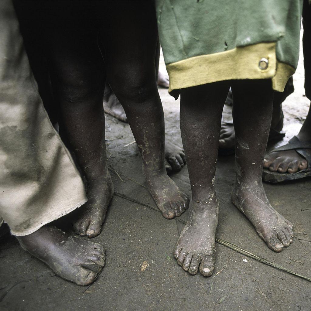 Duh! 58 Ribu Anak di Somalia Terancam Mati Kelaparan