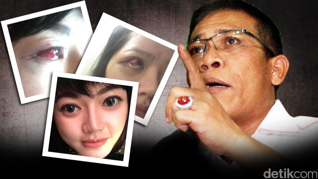 Dita Mengaku Dijenguk Masinton di RS, Tapi Tak Ada Permintaan Maaf