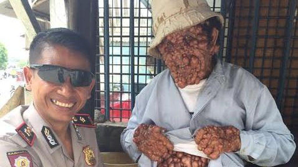 Pak Polisi ini Sapa dan Bantu Pria Tua yang Dihinggapi Penyakit Misterius