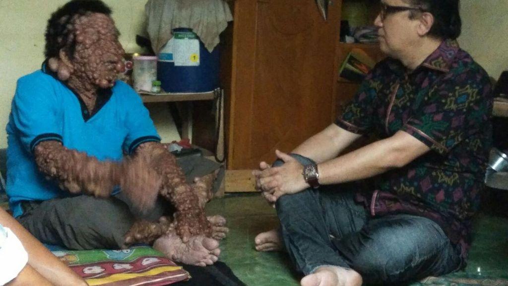 Tantowi Yahya Kunjungi Urip, Siap Bantu Pengobatan ke RS