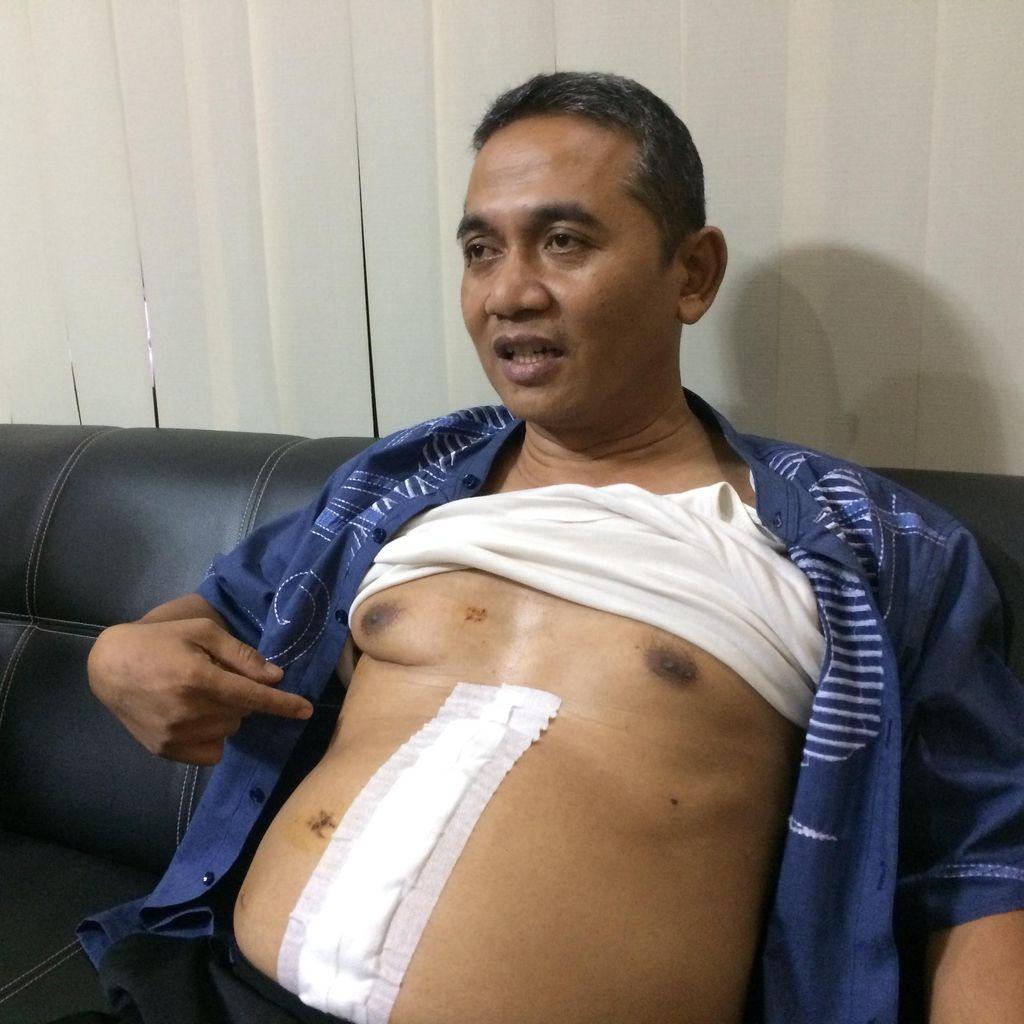 Astaghfirullah, Tembakan Satu Meter yang Mengejutkan Aiptu Budiono