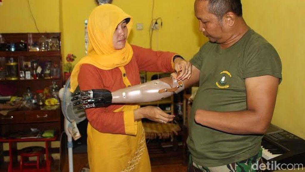Tangan Bionik Memberi Harapan Baru Bagi Keluarga Serka Siswandi