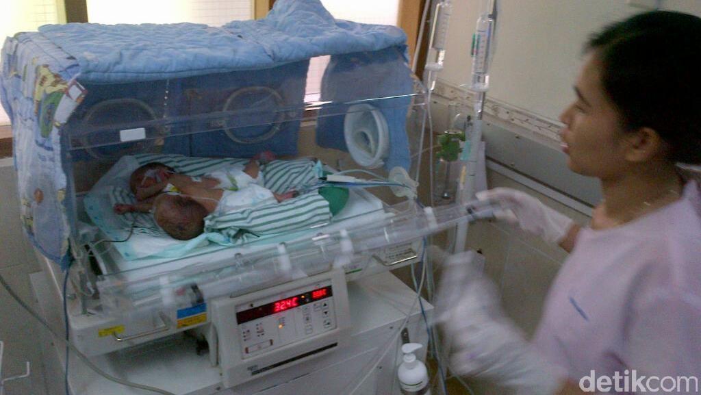 Tolong! Bayi Kembar Siam Dada dan Perut di Semarang ini Butuh Bantuan
