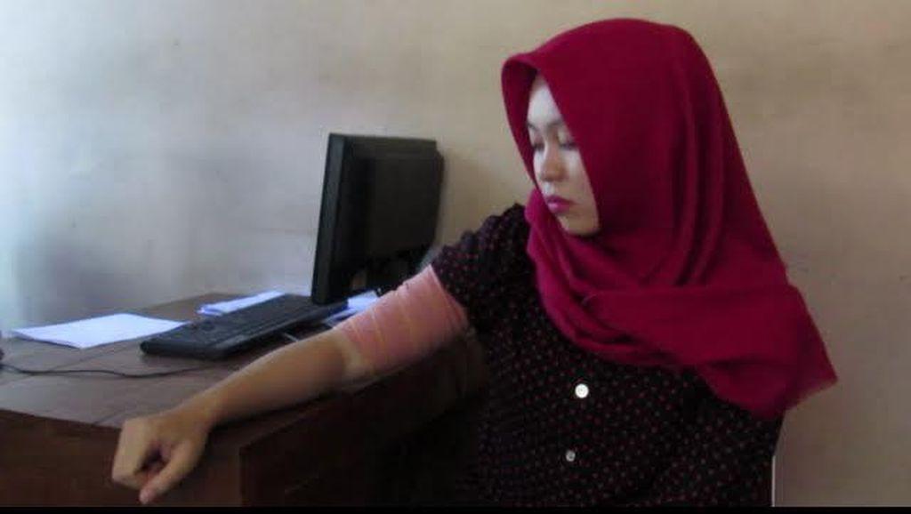 Mahasiswi Korban Penyayatan Begundal Bermotor di Yogya Lapor Polisi