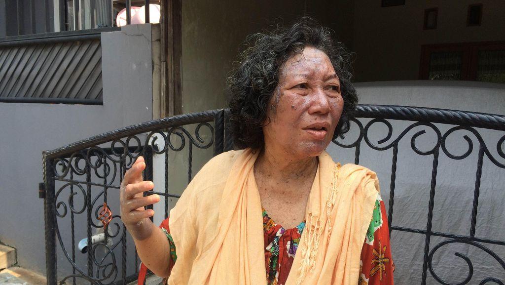 Cerita Korban Ledakan Got di Depok: Saya Terdorong Sampai 50 Meter