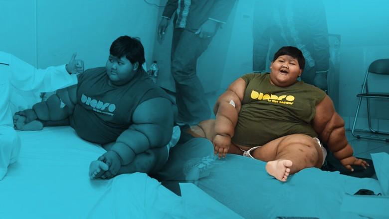 Empat Hari Dirawat di RSHS, Bobot Arya Turun 4 Kilogram
