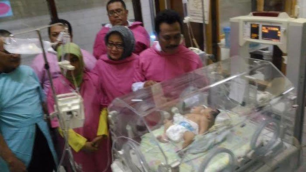 RSU Soetomo Telah Merawat Bayi Berkepala Dua Sebanyak 6 Kasus