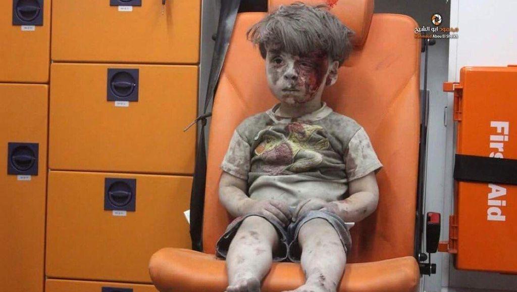 Tatapan Pilu Bocah Korban Perang Suriah
