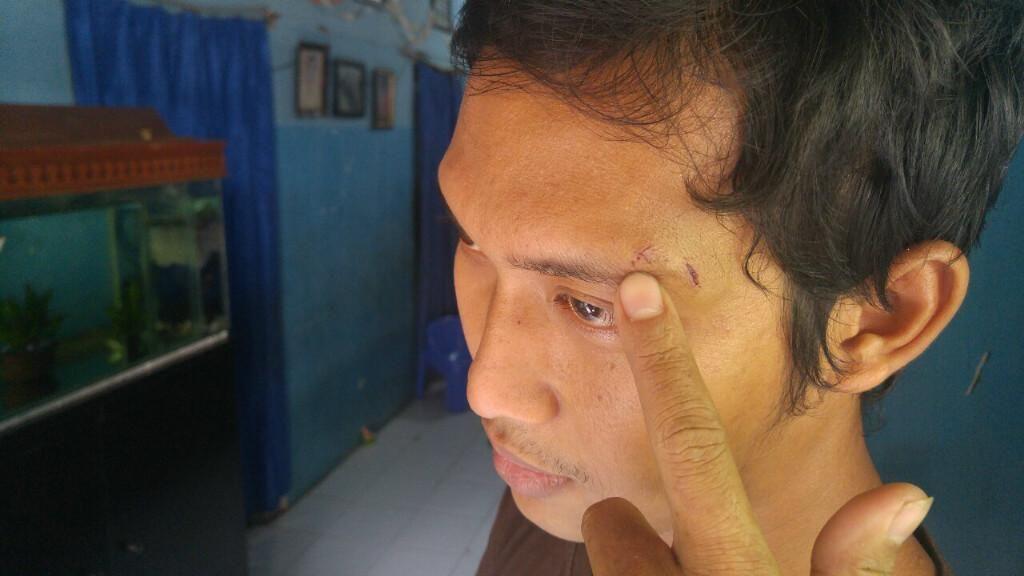 Dipukul Oknum Polisi dengan Revolver, Eko Lapor ke Mapolrestabes Semarang