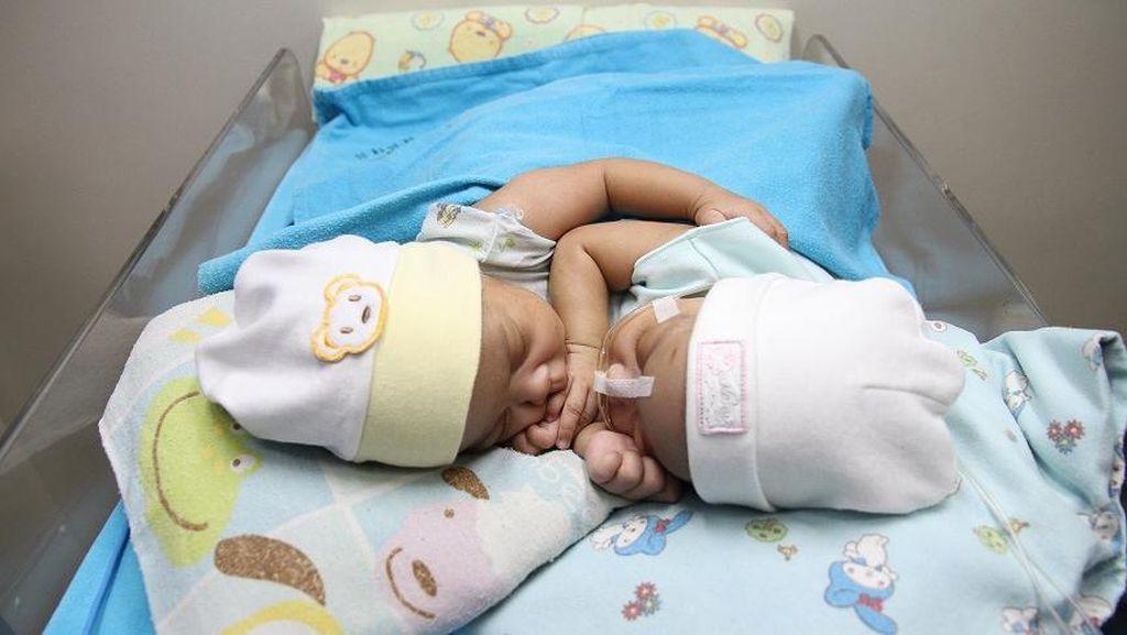 Hari Ini, Bayi Kembar Siam Dempet Dada asal Ciamis Dioperasi
