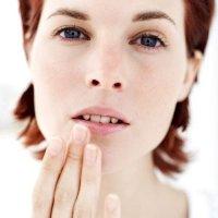 Cara Mengatasi Bibir Pecah-Pecah