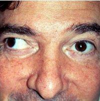 penyebab mata juling