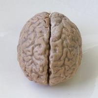 Sisi Misterius Otak Manusia