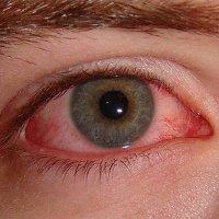 Mitos : Air Ludah Dapat Sembuhkan Sakit Mata