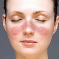 Dokter Sering Tertipu Lupus