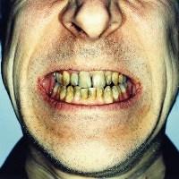 gigi rusak dalam