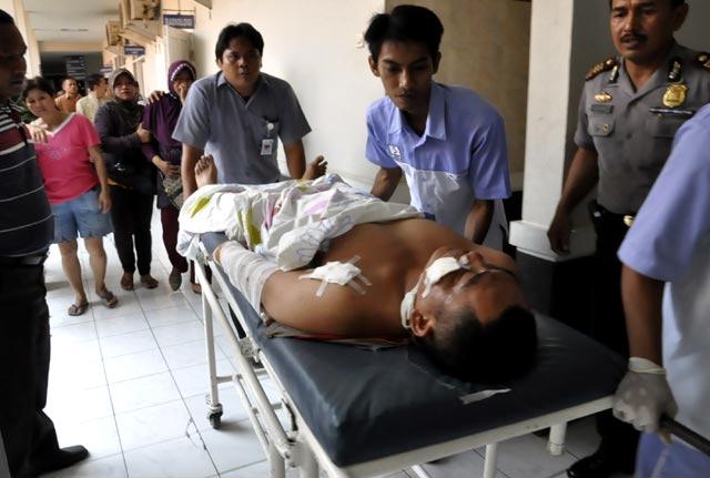 Korban Luka Bom di Masjid Polresta Cirebon