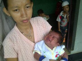 bayi Nangis Darah