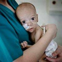 Ajaib Bayi Ini Lahir Tanpa Usus dan Tetap Hidup Hingga Kini - Infoinfo unik