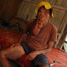 http://images.detik.com/content/2012/04/30/475/kanker.jpg