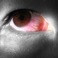 CARA MENCEGAH ALERGI PADA MATA Bengkak Mata Merah Berair