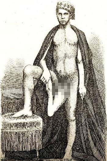 5 Pria yang Mempunyai Alat Kelamin Teraneh di Dunia - raxterbloom.blogspot.com