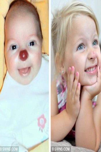 Connie Llyod, 'bayi hidung badut'