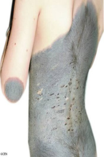 http://images.detik.com/content/2012/12/17/763/110440_hairygirl.jpg