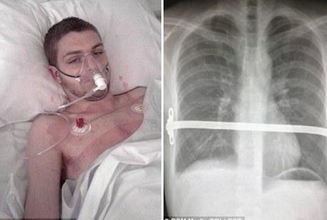 Tulang Rusuk Lelaki Ini Memakan Jantung !