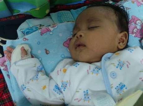 Edwin Timothy, bayi berusia 2,5 bulan yang harus kehilangan dua ruas jari telunjuk, diduga akibat malpraktik yang dilakukan dokter di RS Harapan Bunda