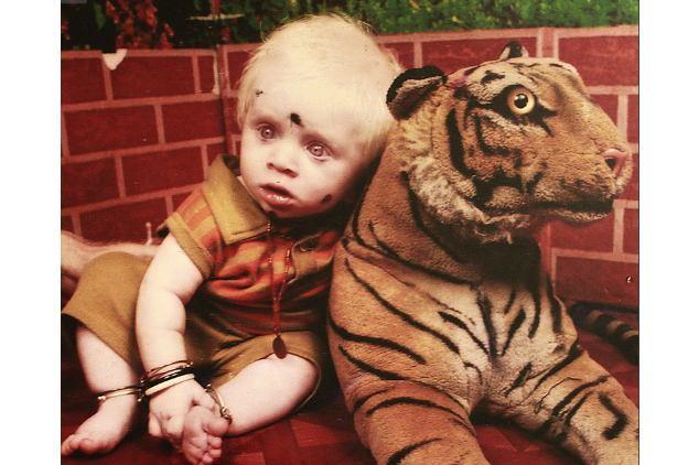 Keluarga Albino Paling Besar Sedunia