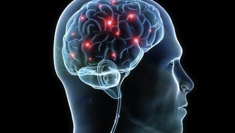 http://images.detik.com/content/2014/08/11/511/brain.jpg