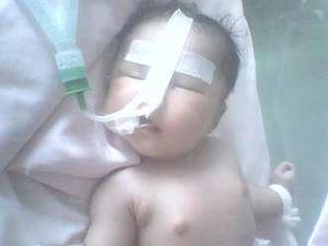 Nafas Sesak, Diva Bayi Penderita Jantung Bocor Masuk ICU Lagi