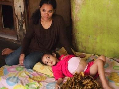 Fajar, Bocah Penderita Tumor Hati di Cilacap Butuh Bantuan
