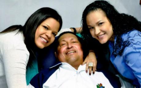 Berjuang Untuk Hidup, Hugo Chavez Jalani Kemoterapi