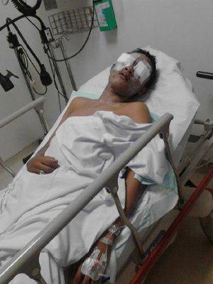 Siswa STM Budi Utomo Disiram Air Keras, Polisi: Dia Korban Tawuran