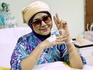 Bulu Hidung Ria Irawan Juga Rontok karena Kanker