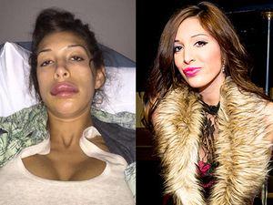 Pasca Bibir Jontor karena Suntik, Farrah Abraham Kini Sudah Cantik Lagi
