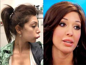 Bibir Jontor karena Suntik, Farrah Abraham Tak Kapok Implan Bokong