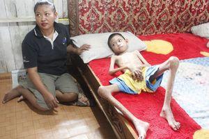Kisah Rizki, Bocah yang Kurus Kering dan Lumpuh karena Penyakit Langka