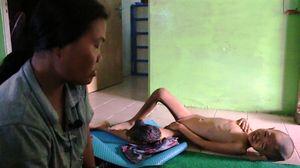 Derita Anak Pemulung Kena Tumor, hanya Dibawa ke Dukun karena Tak Ada Biaya