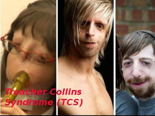 essay on treacher collins syndrome Treacher collins syndrome (tcs) is a rare autosomal dominant disorder of craniofacial development it is a congenital malformation of first and second branchial arch which may affect the size and shape of the ears, eyelids, cheek bones, and jaws.
