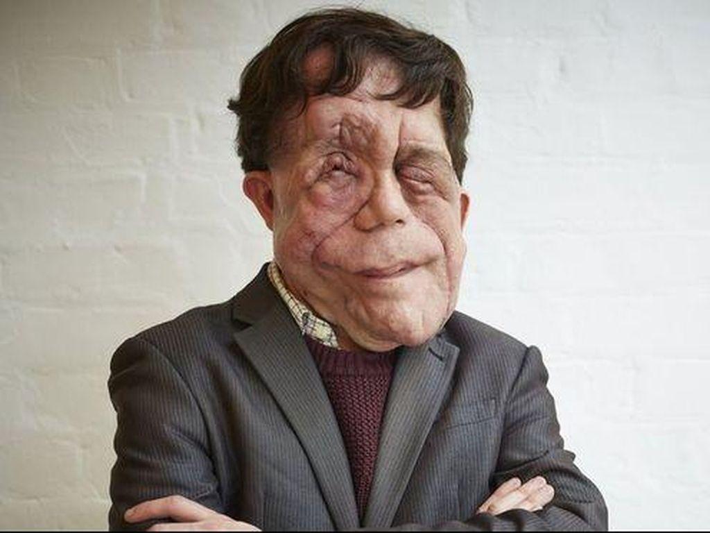 Curhat Adam, Dipanggil Mutan Cacat Karena Wajahnya Penuh Tumor