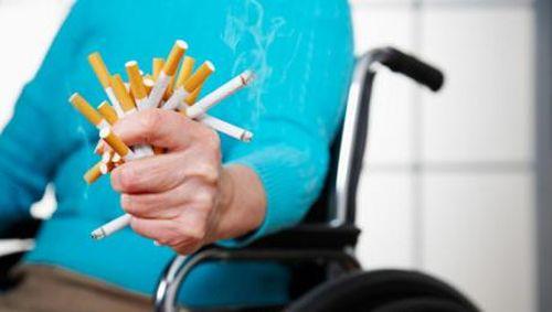 Perokok Pasif Lebih Berisiko Terserang Kanker Paru? Ini Penjelasan Pakar